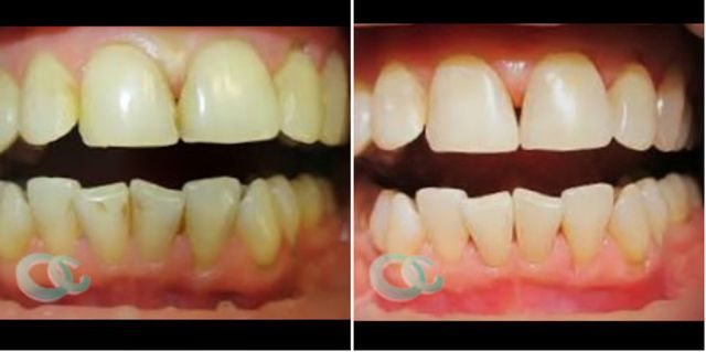 Dentální hygiena před svatbou Brandejs Clinic