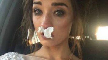 Nevěsta s alergií